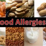 Can food allergies look like mental illness?