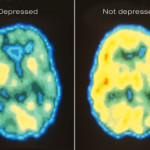 Is Depression A Mental Illness?